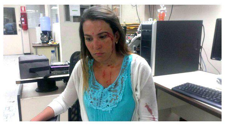 Periodista fue agredida mientras cubría una manifestación