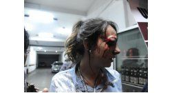 Jornalistas são feridos e detidos pela Polícia durante manifestação em São Paulo