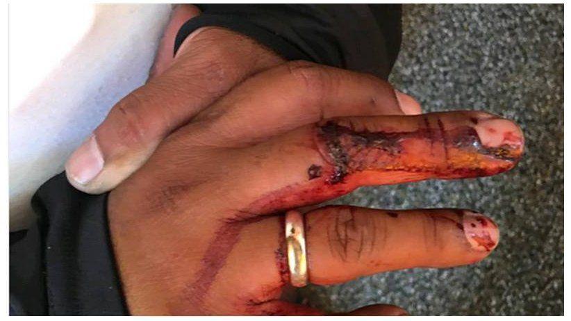 Venezuela: Agresiones y obstáculos a la cobertura periodística